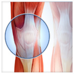 Knee Surgery - Naples - Dr. Mead