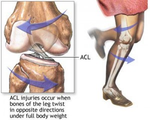 acl - sports medicine - naples orthopedic doctor | leon mead md, Muscles