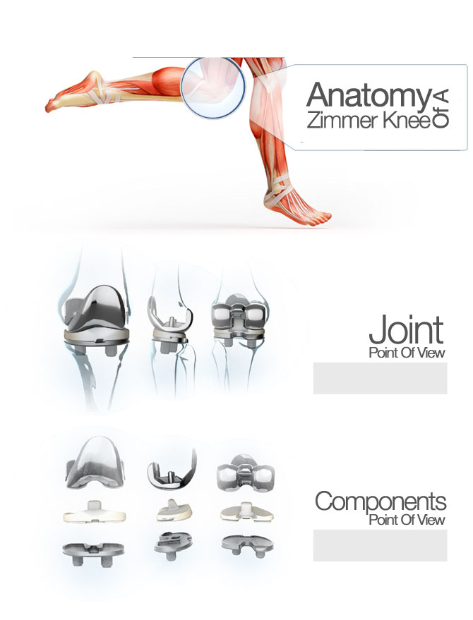 Zimmer Knee Replacement | Orthopedic Doctor, Leon Mead
