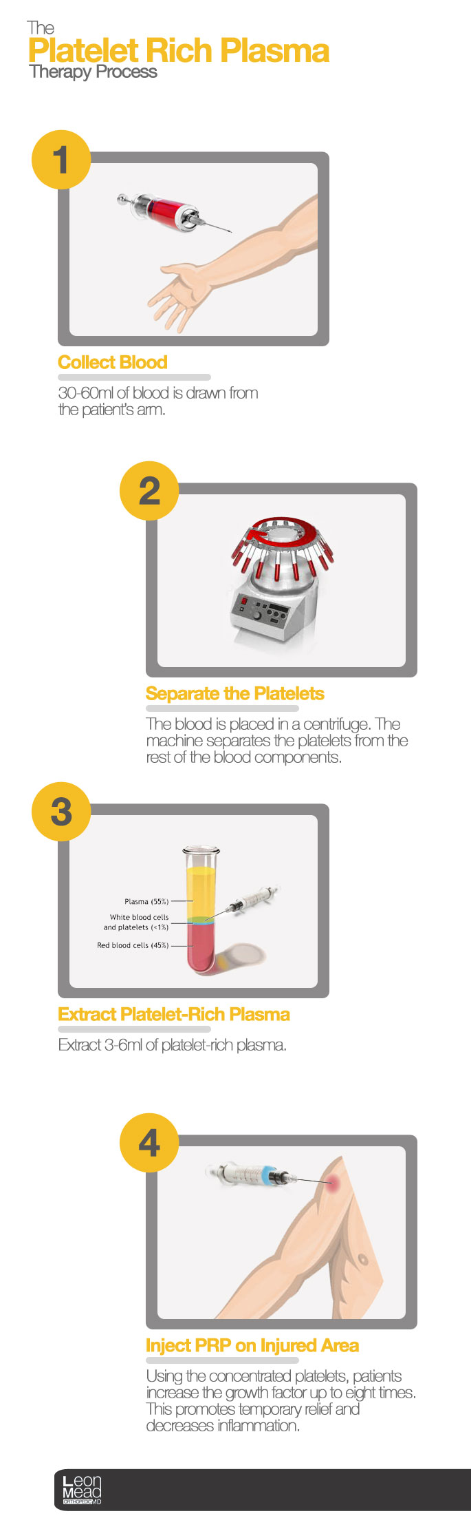 PRP-THERAPY-PROCESS