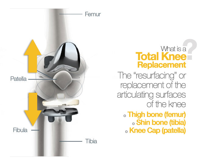Total Knee Replacement Naples Florida | Orthopedic Doctor Leon Mead